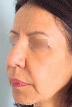 Minilifting de l'ovale du visage vue de quart avant
