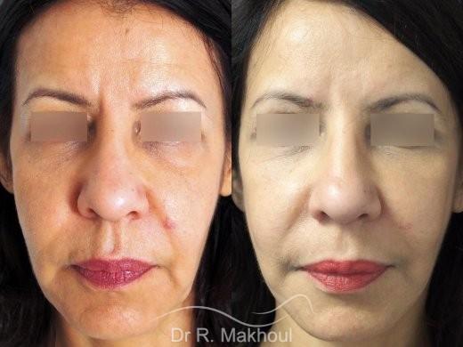 Minilifting de l'ovale du visage vue de face duo