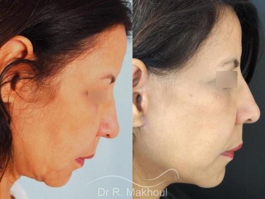 Minilifting de l'ovale du visage vue de profil duo