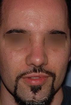 Nez cassé chez l'homme vue de face apres