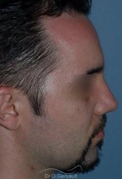 Nez cassé chez l'homme vue de profil apres