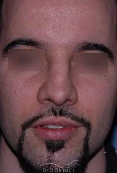Nez cassé chez l'homme vue de face avant