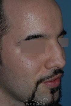 Nez cassé chez l'homme vue de quart avant