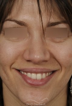 Nez et ailes de nez larges sur peau épaisse vue de face apres