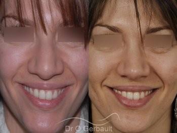 Nez et ailes de nez larges sur peau épaisse vue de face avant-apres