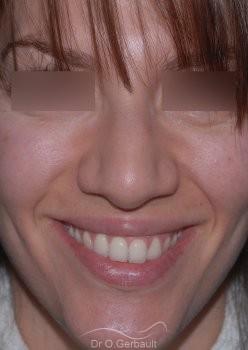 Nez et ailes de nez larges sur peau épaisse vue de face avant