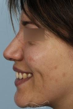 Nez et ailes de nez larges sur peau épaisse vue de profil apres