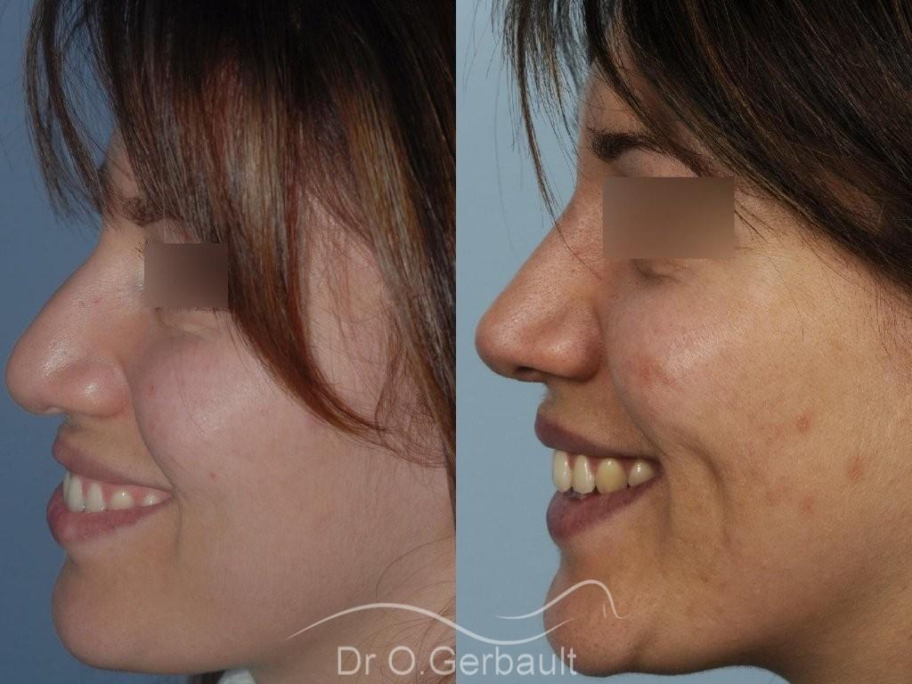 Nez et ailes de nez larges sur peau épaisse vue de profil avant-apres