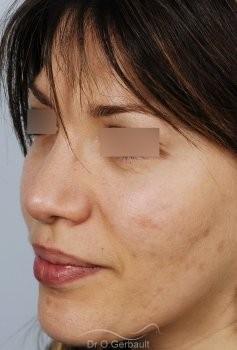 Nez et ailes de nez larges sur peau épaisse vue de quart apres