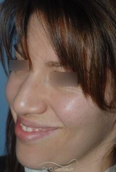 Nez et ailes de nez larges sur peau épaisse vue de quart avant