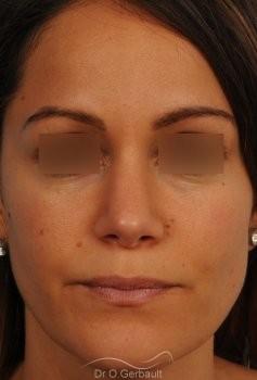 Nez et pointe de nez large Ethnique vue de face apres