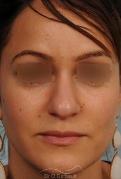 Nez et pointe de nez large Ethnique vue de face avant