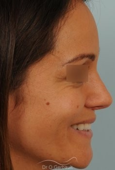 Nez et pointe de nez large Ethnique vue de profil apres