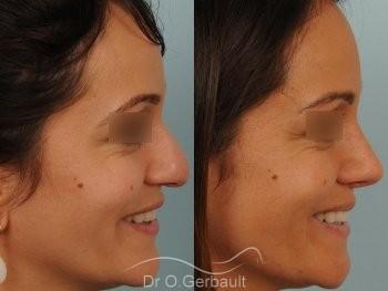 Nez et pointe de nez large Ethnique vue de profil avant-apres