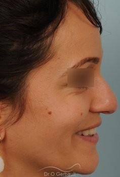 Nez et pointe de nez large Ethnique vue de profil avant