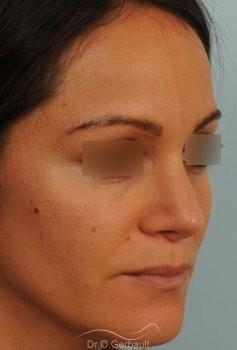 Nez et pointe de nez large Ethnique vue de quart apres