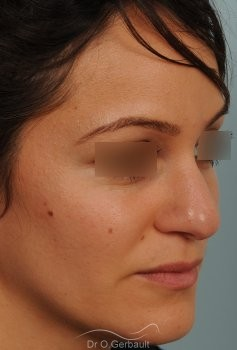 Nez et pointe de nez large Ethnique vue de quart avant
