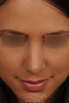 Nez et pointe globalement trop larges vue de face apres