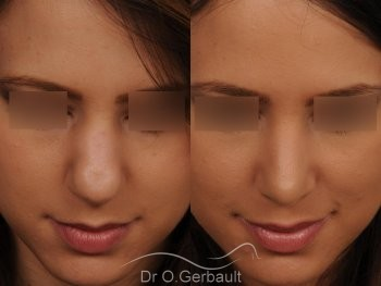 Nez et pointe globalement trop larges vue de face avant-apres