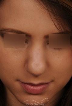 Nez et pointe globalement trop larges vue de face avant