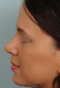 Nez et pointe globalement trop larges vue de profil apres