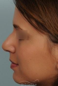 Nez et pointe globalement trop larges vue de profil avant