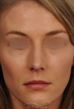 Nez et pointe large avec bosse marquée vue de face apres
