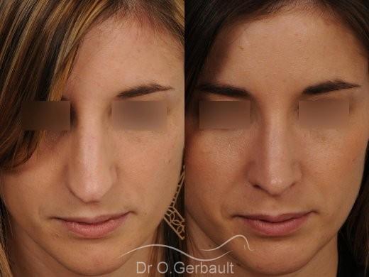 Nez et pointe large avec bosse marquée vue de face avant-apres
