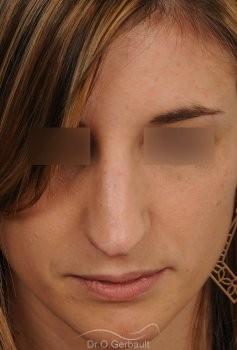 Nez et pointe large avec bosse marquée vue de face avant