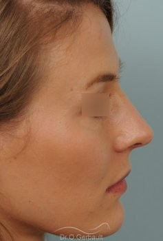 Nez et pointe large avec bosse marquée vue de profil apres