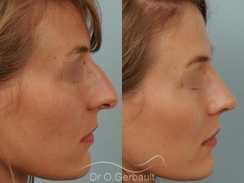 Nez et pointe large avec bosse marquée vue de profil avant-apres