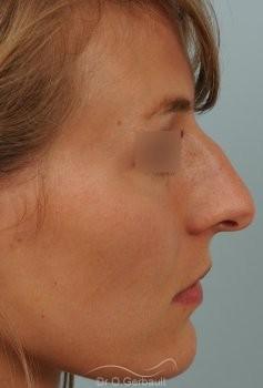 Nez et pointe large avec bosse marquée vue de profil avant