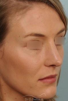 Nez et pointe large avec bosse marquée vue de quart apres