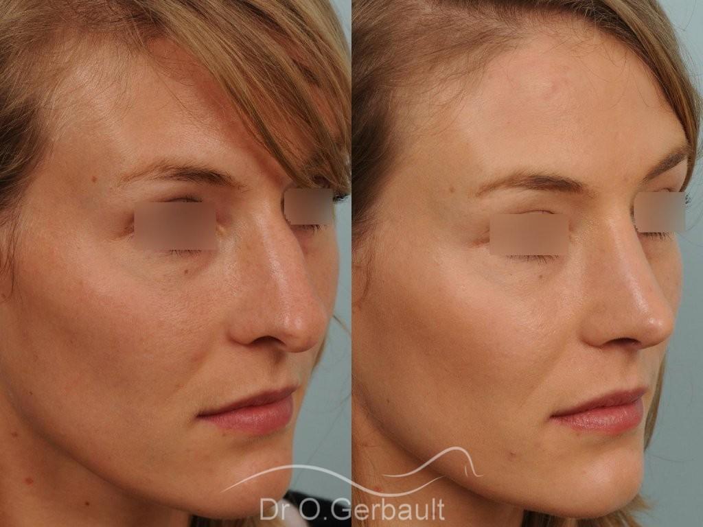 Nez et pointe large avec bosse marquée vue de quart avant-apres