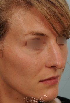 Nez et pointe large avec bosse marquée vue de quart avant