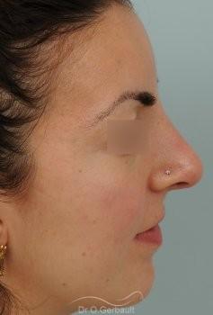 Nez et pointe larges vue de profil apres