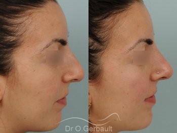 Nez et pointe larges vue de profil avant-apres