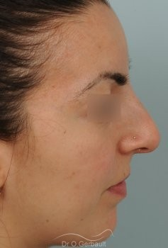 Nez et pointe larges vue de profil avant