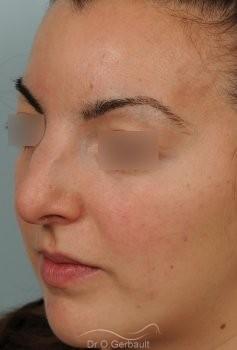 Nez et pointe larges vue de quart avant