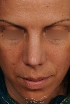 Nez et pointe trop larges vue de face apres