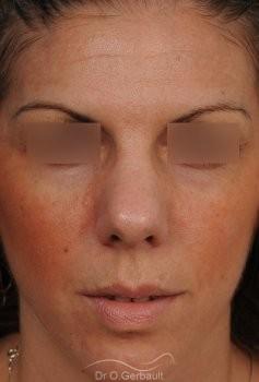 Nez et pointe trop larges vue de face avant