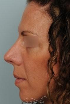 Nez et pointe trop larges vue de profil apres