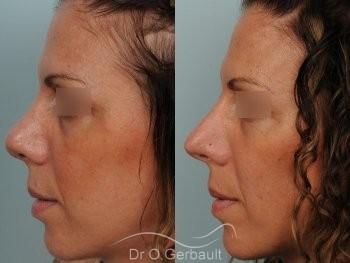 Nez et pointe trop larges vue de profil avant-apres