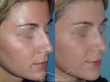 Nez fort avec bosse et pointe de nez large vue de quart avant-apres