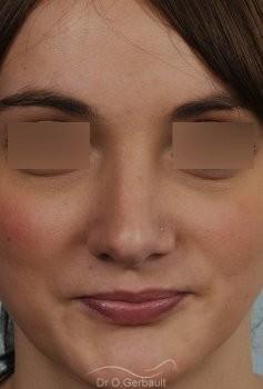 Nez fort, trop projeté et columelle tombante vue de face apres