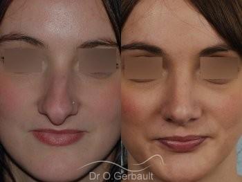 Nez fort, trop projeté et columelle tombante vue de face avant-apres
