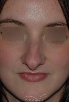 Nez fort, trop projeté et columelle tombante vue de face avant