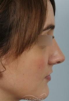 Nez fort, trop projeté et columelle tombante vue de profil apres