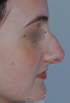 Nez fort, trop projeté et columelle tombante vue de profil avant