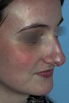 Nez fort, trop projeté et columelle tombante vue de quart avant